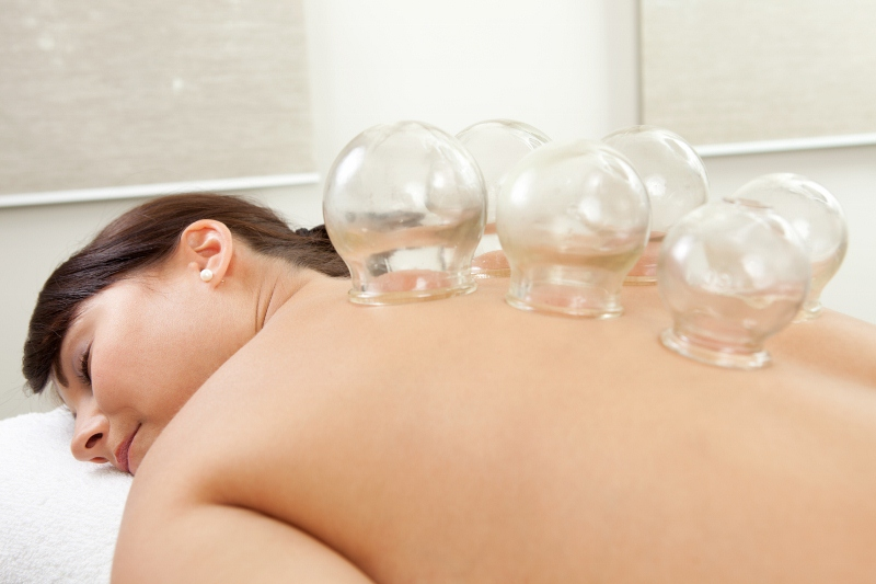 About chinese cupping therapy