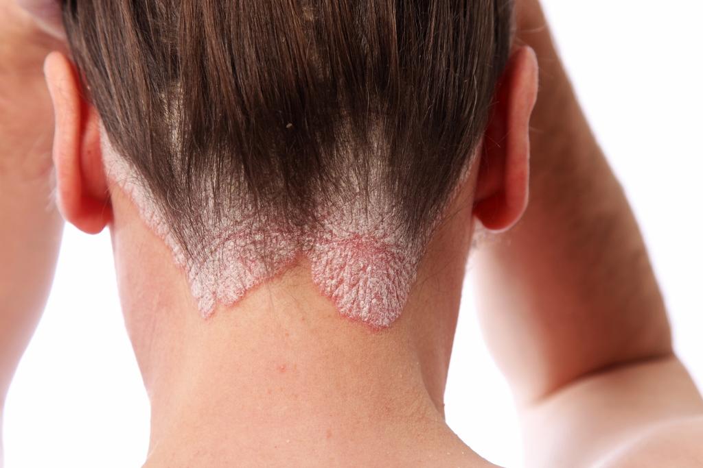 Treatments  Skin AilmentsSkin Ailments  Psoriasis & Eczema TreatmentPsoriasis & Eczema Treatment 1